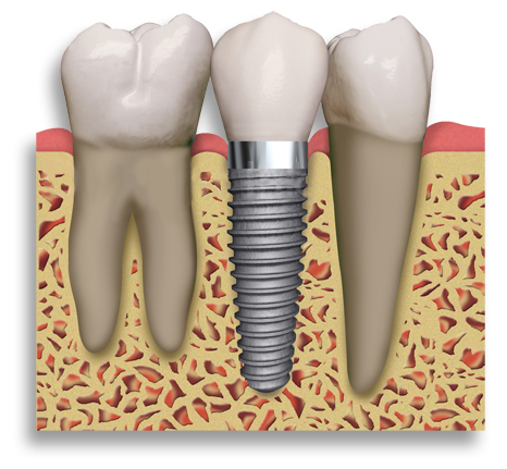 Dental_Implant_2_teeth.204153719_std