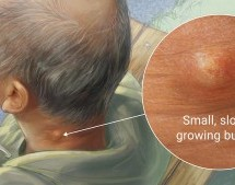Quick Answers For 3 Frequently Asked Questions On Cysts