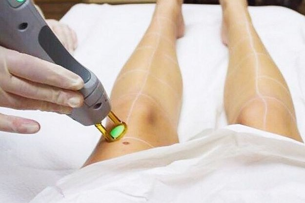 The Most Common Injuries You can Receive from Laser Hair Removal Treatment