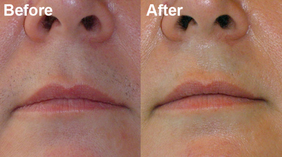 Preparing For A Successful Upper Lip Laser Hair Removal Procedure