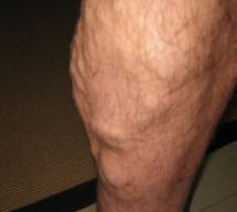 How Effective Is Sclerotherapy At Varicose Vein Removal