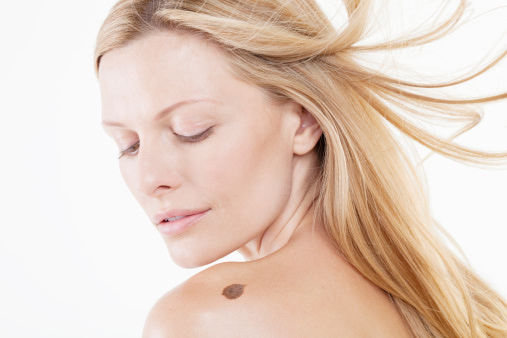 Important Facts To Know About Melanoma