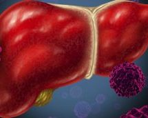 Proper Treatment In India For Liver Cirrhosis